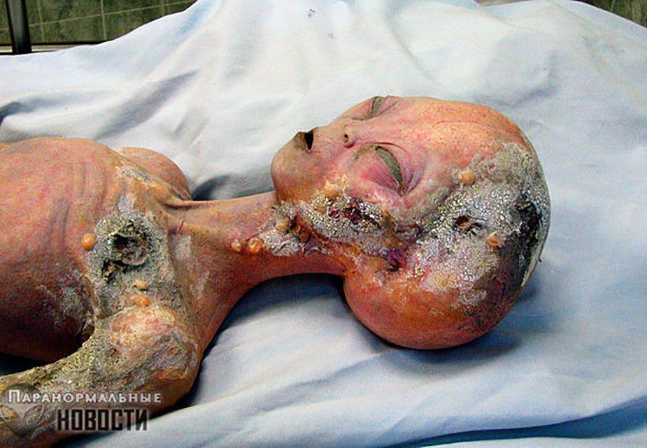 Пришельцы подвергались хирургическим вмешательствам на секретных базах в США