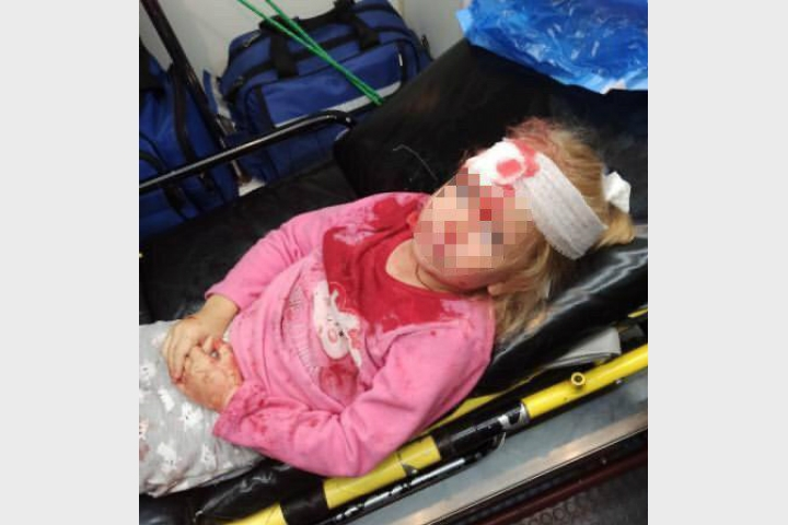 В сети появилось фото пострадавшей в Гродно от ОМОН-а маленькой девочки